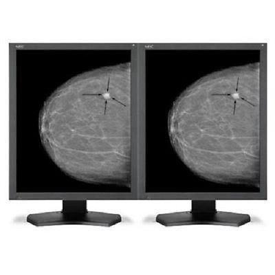"NEW EIZO RadiForce 21.3"" GS521-CL Dual Head LCD X-Ray Grayscale Medical Monitor"